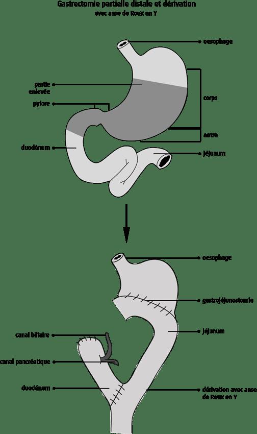 Schéma de la gastrectomie partielle distale et dérivation avec anse de Roux en Y