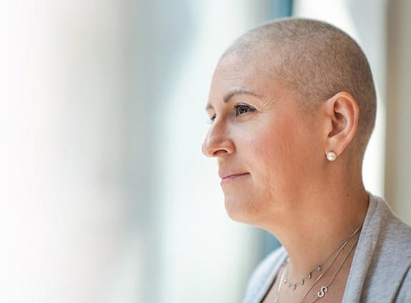 A woman with a head shaved looks into the distance
