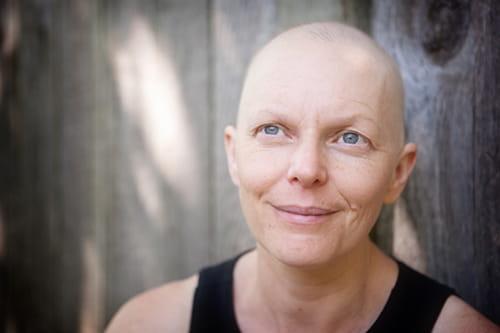 A bald woman smiling