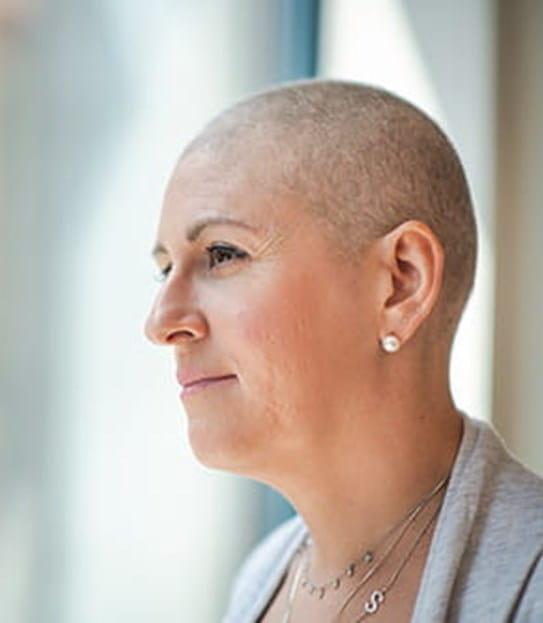 Une femme avec une tête rasée