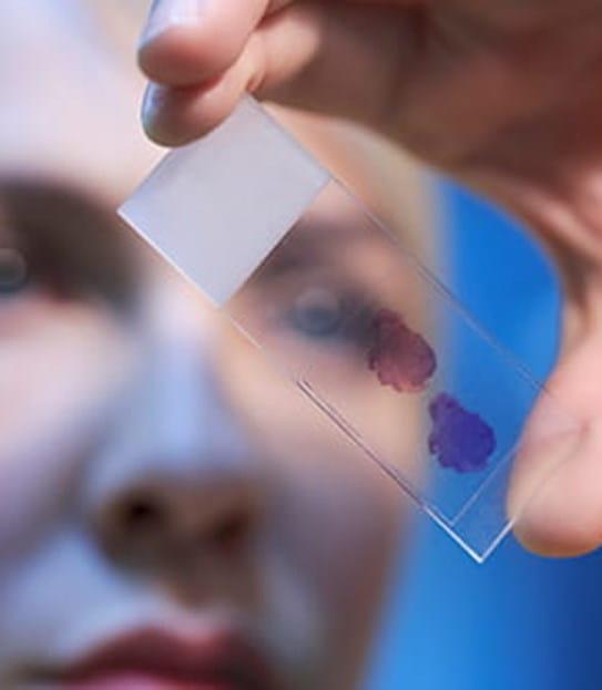 Un scientifique regardant un échantillon de sang