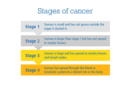 An image explaining the 4 stages of cancer