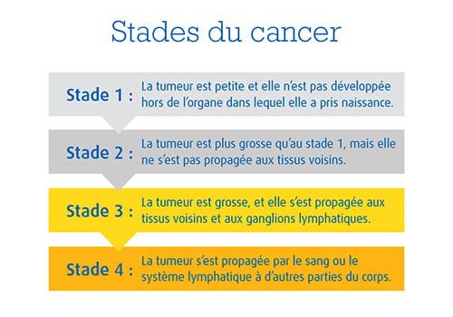 Une image expliquant les 4 stades du cancer
