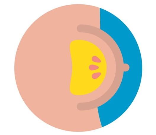 Image d'un sein