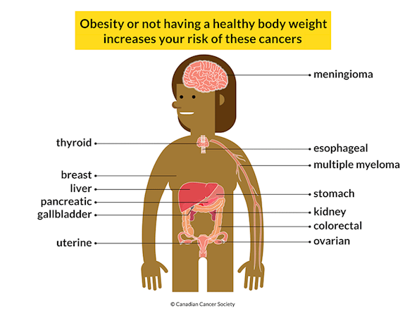 Graphic of a body labelled with 13 different cancers: meningioma, thyroid, esophageal, multiple myeloma, breast, liver, stomach, pancreatic, kidney, gallbladder, colorectal, uterine and ovarian. Not having a healthy body weight increases your risk of these cancers.