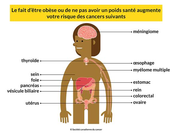 Schéma d'un corps où sont identifiés 13 cancers différents : méningiome, thyroïde, œsophage, myélome multiple, sein, foie, estomac, pancréas, rein, vésicule biliaire, colorectal, utérus et ovaire. Ne pas avoir un poids santé augmente votre risque de développer ces cancers.