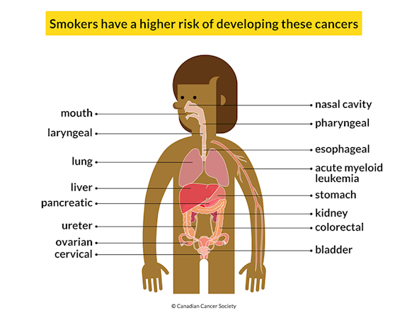 A body showing 16 cancers smokers have a higher risk of developing: mouth, lung, liver, etc.