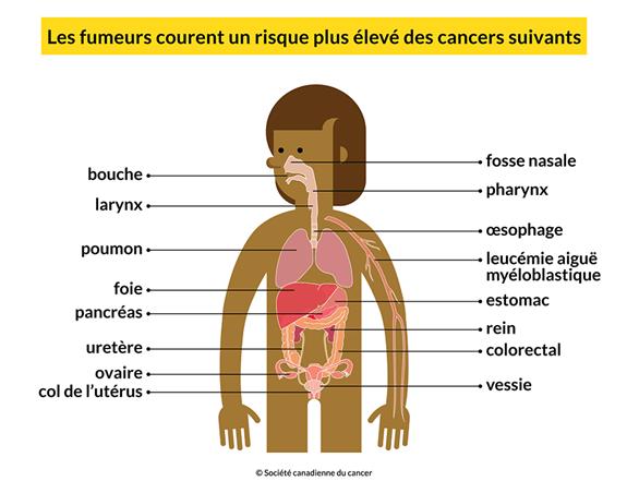Un corps montrant les 16 cancers que les fumeurs risquent davantage de développer: bouche, poumon, foie, etc.