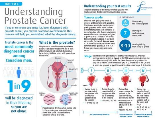 """Le paquet """"Comprendre le cancer de la prostate"""""""