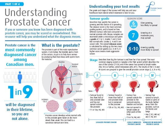 Understanding Prostate Cancer Package, a comprehensive resource for men who have prostate cancer