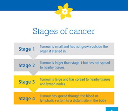An infographic that shows the four stages of cancer.