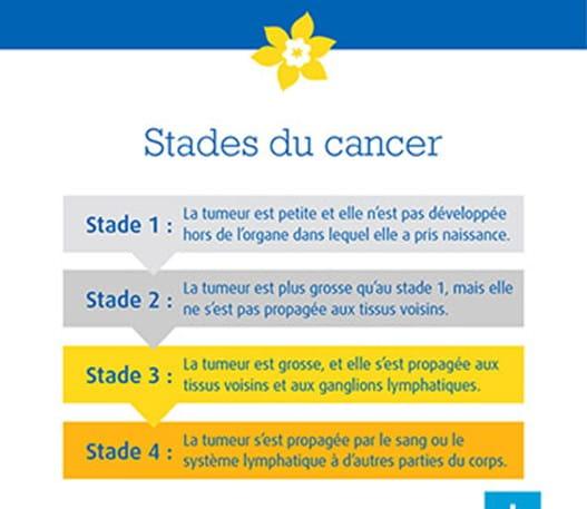Une infographie qui montre les quatre stades du cancer.